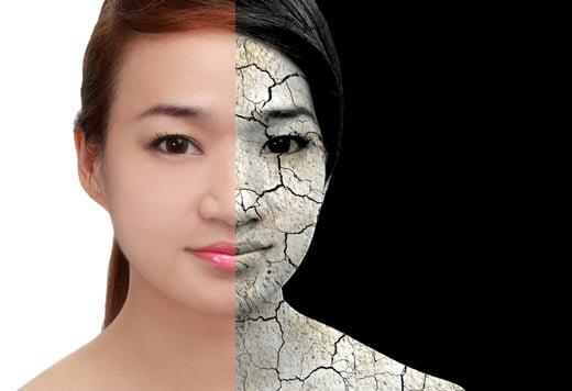乾燥肌に悩む女性は意外と多い