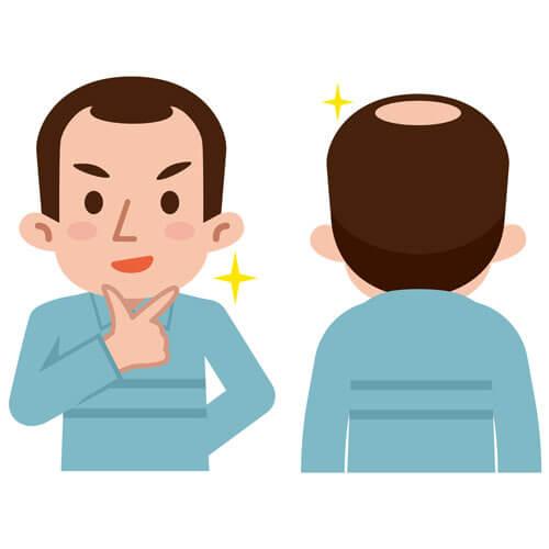 育毛剤を用いた円形脱毛症の治療効果について