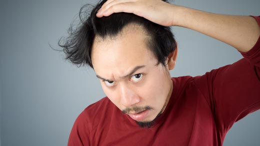 乾燥肌だと薄毛や抜け毛になりやすい?頭皮の環境も要チェックしておく