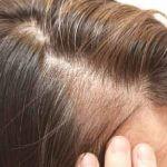 白髪が発生する原因なに?食事内容やストレスも影響大!