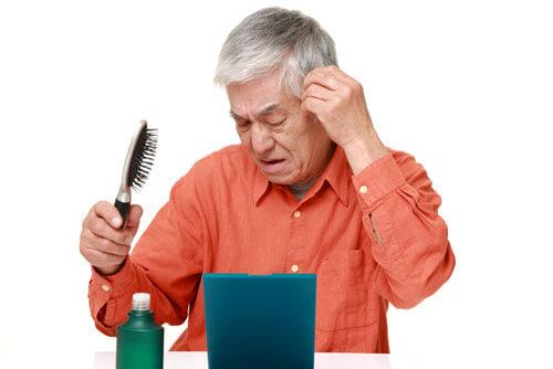 ちびと薄毛に関係する遺伝子は存在する