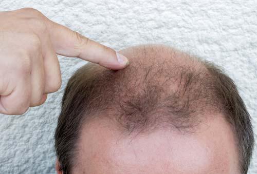 育毛は頭皮の保湿が重要!肌のタイプで薄毛対策を変えよう!