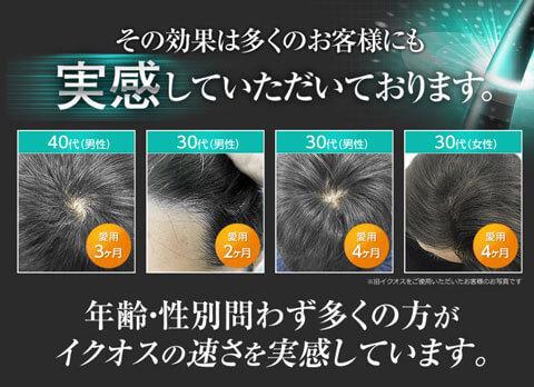 AGA男性型脱毛症の予防にもなるイクオス