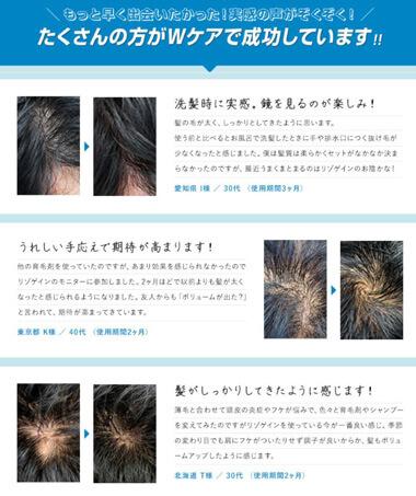 リゾゲインは新しいタイプの育毛剤