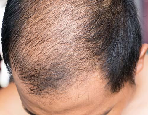 頭皮保湿タイプの育毛剤を利用しよう