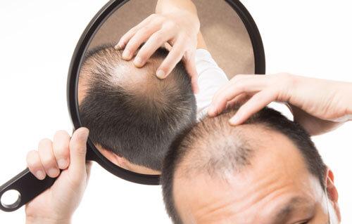 フケやかゆみなどを防ぐにはきちんとした育毛ケアが必要