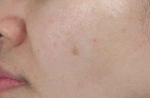 皮膚に黒ずみが起こる主な原因は次の4つ