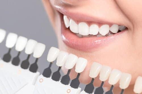 美しい歯を実現する!失敗しない審美歯科選びのポイント
