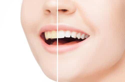 黄色い歯の原因と対処法!白くする方法と歯磨きの注意点!