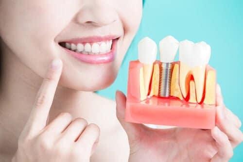 インプラントした歯は白いままを保ちたい!インプラント治療のメリットとデメリットとは